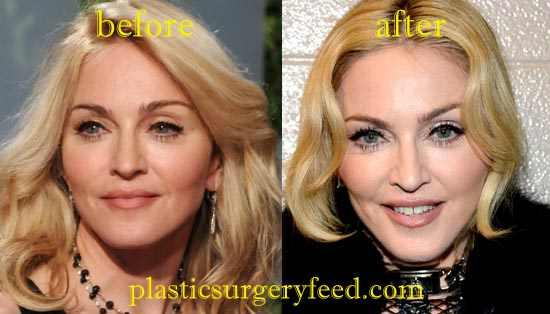 Madonna Facial Enhancement