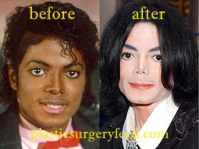 Michael Jackson Facial Reconstruction