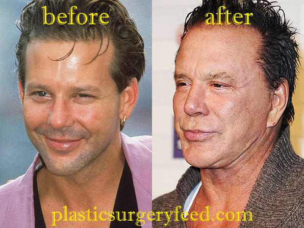 Mickey Rourke Cheek Augmentation