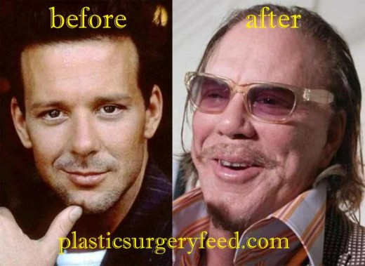 Mickey Rourke Nose Job