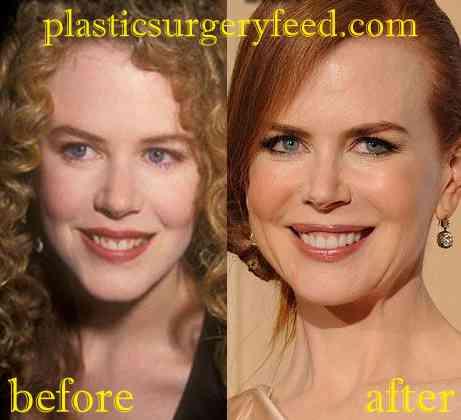 Nicole Kidman Facelift and Botox