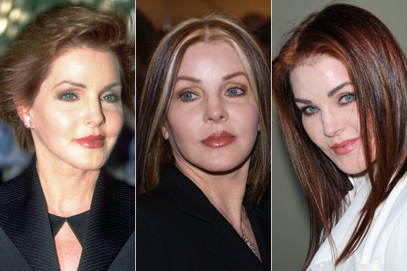 Priscilla Presley Plastic Surgery Before After