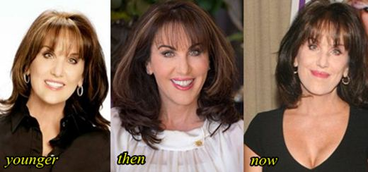 Robin McGraw Lips Enhancement