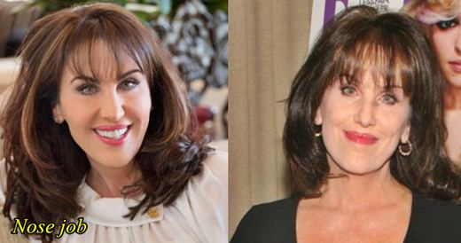 Robin McGraw Nose Job and Botox