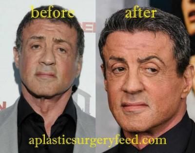 Sylvester Stallone Botox