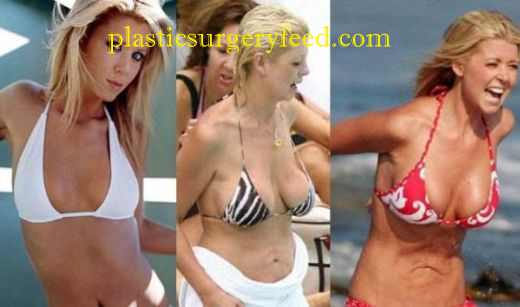 Tara Reid Liposuction