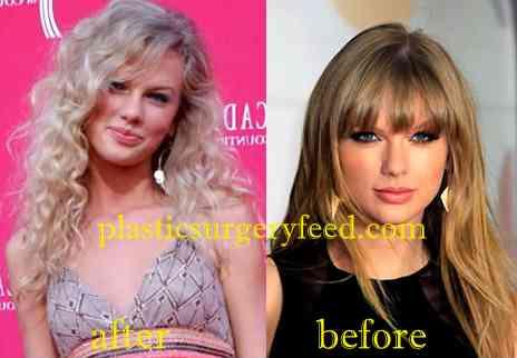 Taylor Swift Nose Job