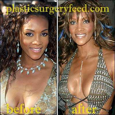 Vivica Fox Breast Implants