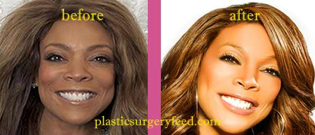 Wendy Williams Nose Job