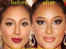 Adrienne Bailon Lip Implant
