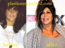 Big Ang Breast Implant
