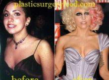 Lady Gaga Breast Implant
