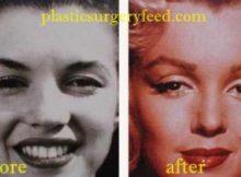 Marilyn Monroe Nose Job Rhinoplasty