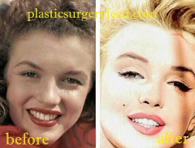 Marilyn Monroe Nose Surgery