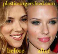 Scarlett Johansson Nose Job