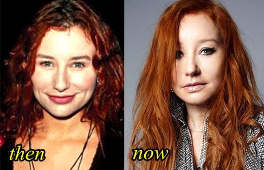 Tori Amos Botox