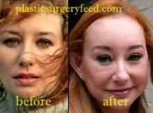 Tori Amos Eyelift Surgery