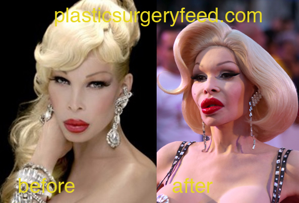 Amanda Lepour before and after botox