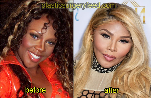 lil kim before and after plastic surgery 1
