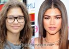 zendaya underwent plastic surgery